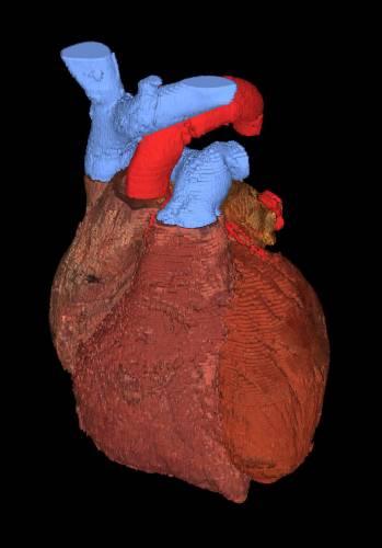 Jak zlepšit imunitní toleranci transplantátů