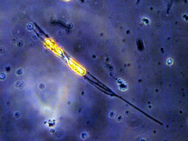 Plankton bojuje s ultrafialovým zářením