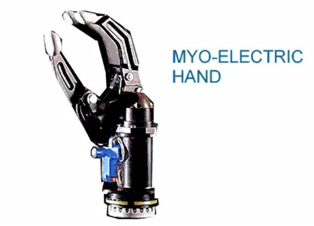 Budoucnost protetiky nebo sci-fi?