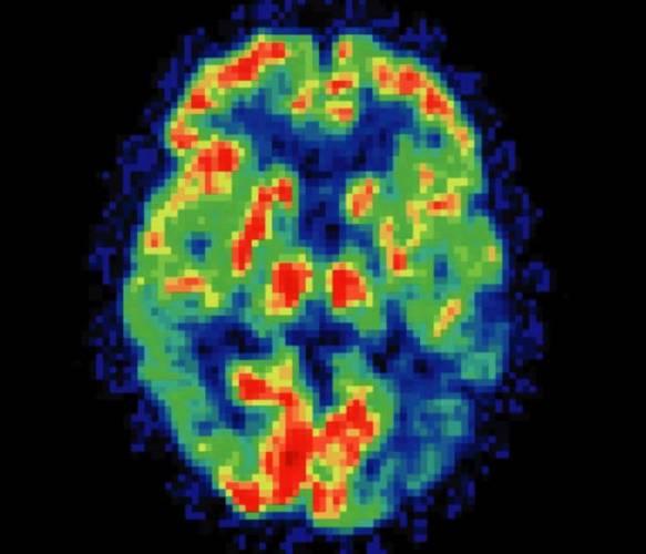 Vědci z výzkumného centra pro Alzheimerovu chorobu v USA tvrdí, že mastné kyseliny v rybím oleji mohou hrát důležitou úlohu v prevenci této nemoci, která se zdá být novodobou metlou lidstva.