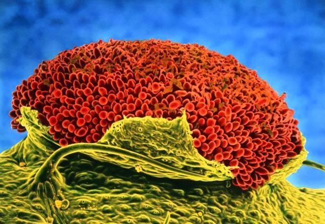 S elektronovým mikroskopem se dají dělat skutečné divy. Například zachytit detail miniaturních hub, jako například zde u rzi bobové (Uromyces Fabae).