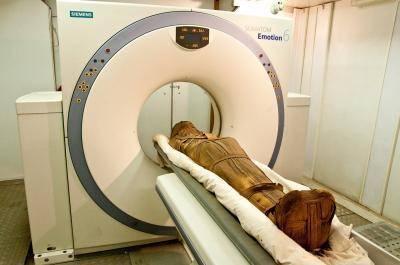Arteroskleróza neboli kornatění tepen je jedním z nejběžnějších a také nejzákeřnějších civilizačních onemocnění. Při průzkumu egyptských mumií vědci zjistili, že tyto zdravotní komplikace se nevyhýbaly ani lidem z dávných civilizací.