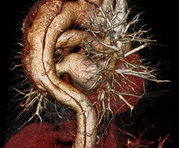 Nejspíš každý zná někoho, kdo zemřel – často náhle – na choroby srdce a cév. Není tajemstvím, že i u nás jsou tato kardiovaskulární onemocnění hlavní příčinou úmrtí více než 50 000 mužů, žen i dětí ročně.