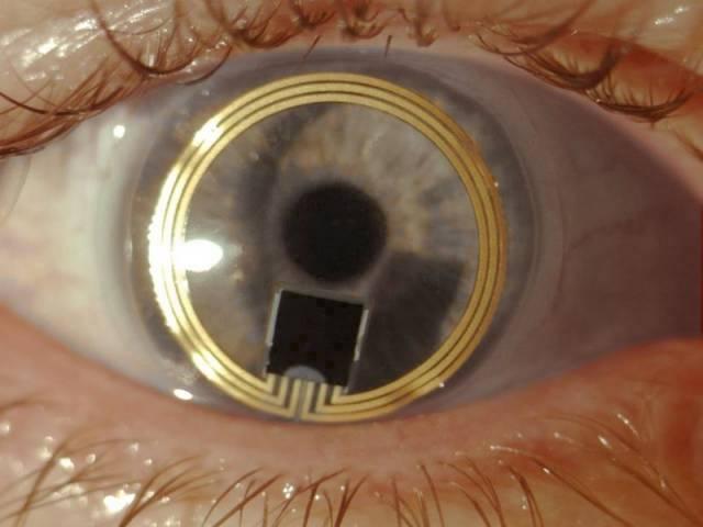 Glaukom, lidově zvaný zelený zákal, je jedno z nejběžnějších onemocnění zraku a také druhá nejčastější příčina slepoty. Problémy s ním spočívají hlavně v tom, že z počátku je prakticky bez příznaků. Jeho včasnému určení by mohly napomoci speciální kontaktní čočky vyvinuté specialisty švýcarské firmy Sensimed.