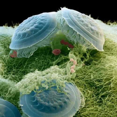 To, co vidíte na obrázku, nejsou ani kosmické létající talíře, ani nějaký zvláštní druh medúz. Skenovací elektronový mikroskop zachytil svět, který zůstává našemu běžnému zraku ukrytý. Podivní tvorové na snímku jsou droboučcí jednobuněční prvoci nálevníci, kteří jsou známí pod českým názvem brousilka (Trichodina sp.).