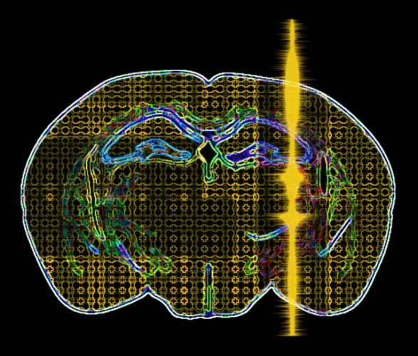 Profesorka Elisa Konofagou, která se věnuje medicínskému bioinženýrství, objevila slibné účinky ultrazvuku při léčbě mozkových degenerativních onemocnění, jako je Alzheimerova a Parkinsonova choroba. Projekt získal podporu NSF (National Science Foundation) a my vám přinášíme jeho první výsledky.