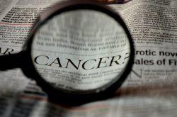 Léčba zhoubných nádorů kůže za miliony