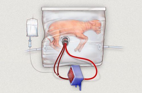 Předčasně narozeným dětem bude život zachraňovat umělá děloha