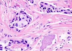 Za návrat rakoviny prsu mohou některé geny