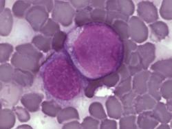 Brněnští vědci mají novou metodu léčby leukemie