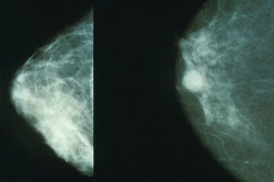 Objev brněnských vědců je nadějí proti rakovině