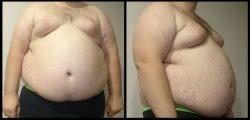 Nadváha vám může zkrátit život