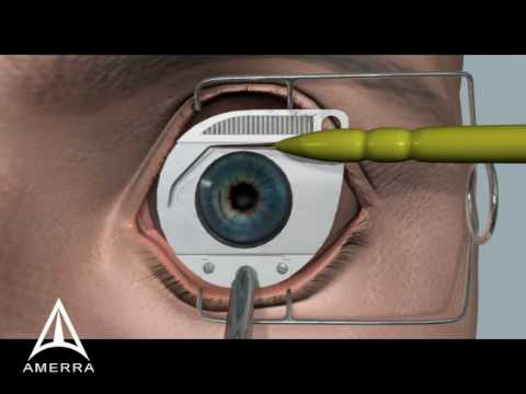 Operace oka femtosekundovým laserem