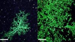 Kmenové buňky opraví poškozené plíce