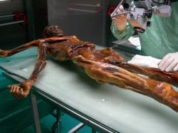 Pračlověka Ötziho nejspíše sužovaly bolesti břicha