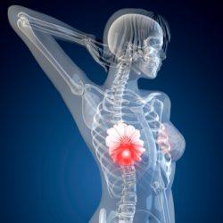 Čeští vědci jsou na stopě léku na rakovinu