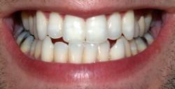 Zubní sklovina pochází z kůže